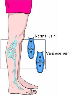 The cause of varicose veins, when the veins enlarge, the valves fail and blood flows backward.